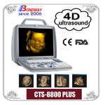 Digital 4D ultrasound imaging system, 3d ultrasound