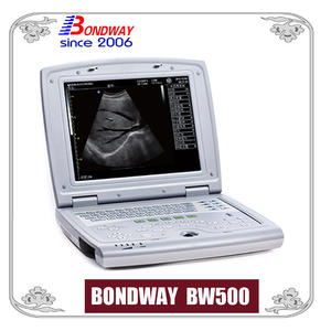 ultrasound scanner, ultrasound scan, ultrasonic machine, made in China