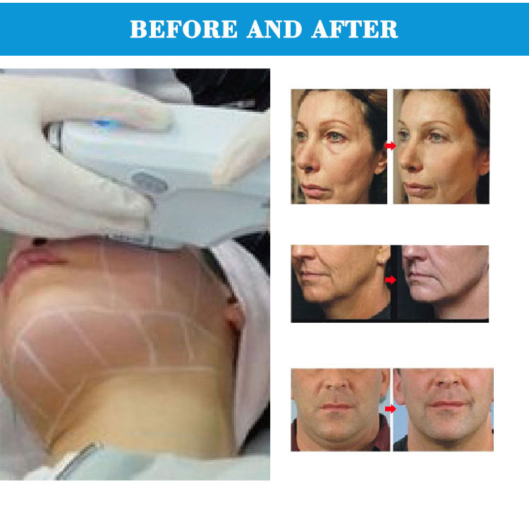 RF face beauty machine effections