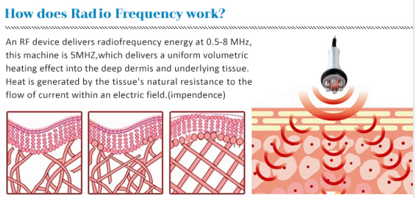 How does radio frequency work?
