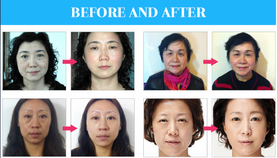 RF skin lifting beauty machine effections