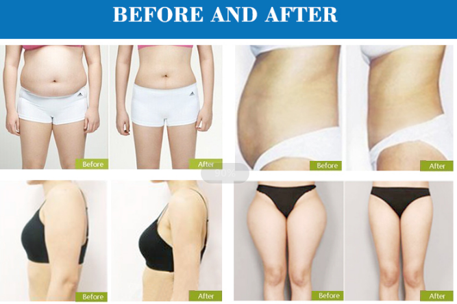 Radio Frequency Slimming Treatment machine effections
