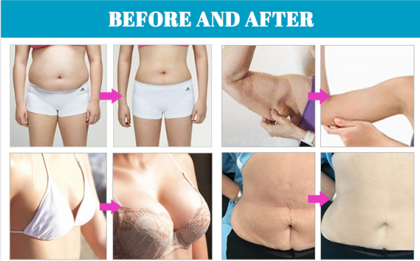 Vacuum RF cavitation body shaping beauty machine effects