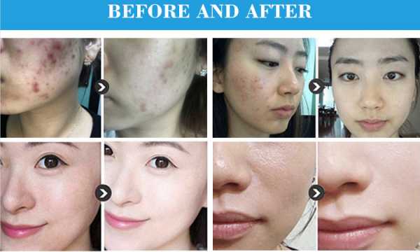 PDT therapy LED light skin rejuvenation beauty machine effections