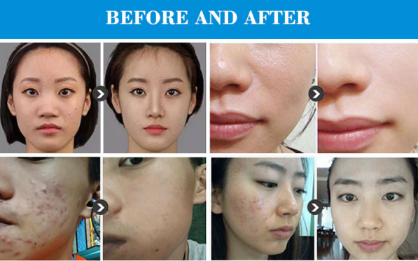 Oxygen skin deep cleaning small bubble dermabrasion machine effects