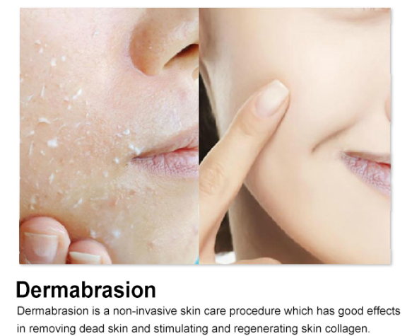 Mini Facial Hydra Dermabrasion Machine  effeccts