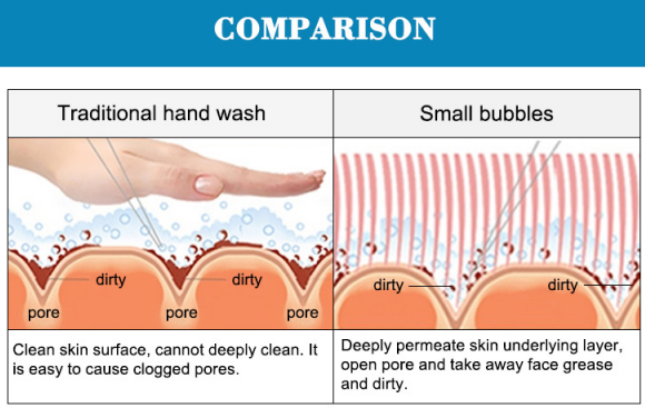 skin deep cleaning Oxygen  small bubble dermabrasion machine comparison