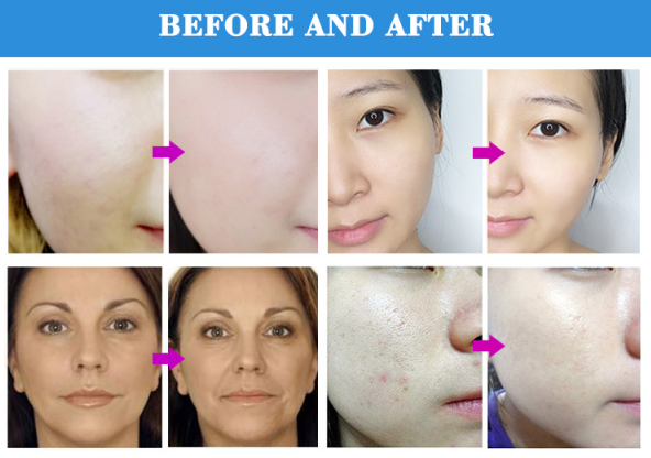 Diamond microdermabrasion machine effects